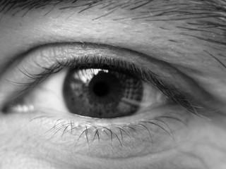 friendly eye