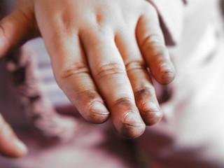 schmutzige kinderhand