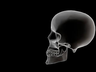 head xray profile