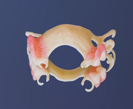 acetal denture