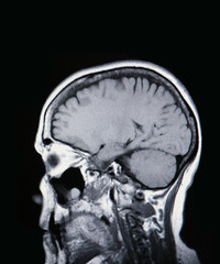 a real mri/ mra (magnetic resonance angiogram) of the brain