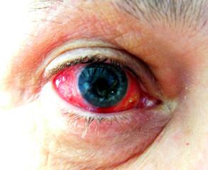 eye post surgery