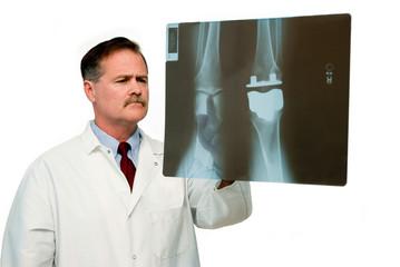 titanium knee replacement