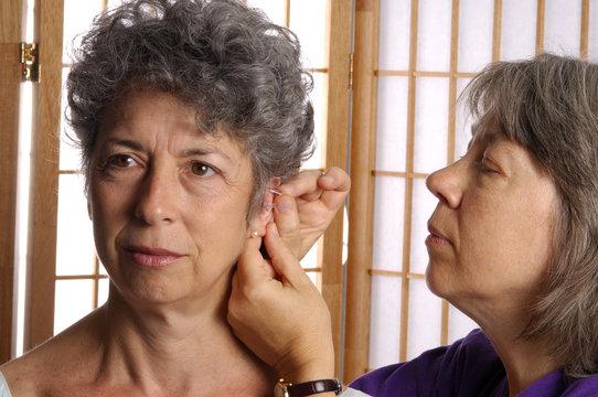 acupuncturist needling ear of senior woman