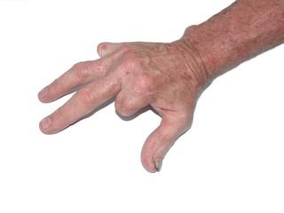 amputated fingers