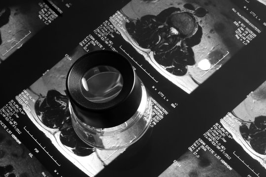 mri with magnification loupe