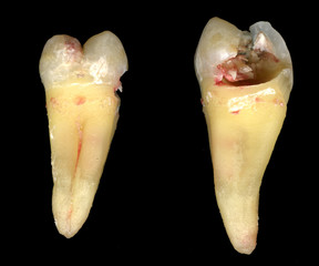 Tooth #18