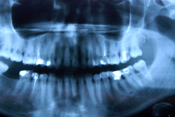x-ray – panoramic photo of roentgen – jaw, mandible