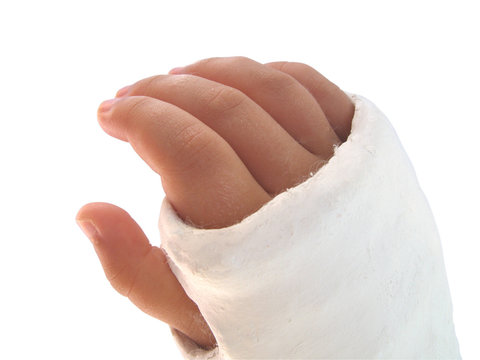 Broken arm in plaster - isolated on white