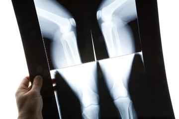 knee x-ray photo