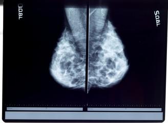 x-ray mammogram