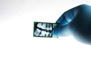Dentist looking at xray of patients teeth