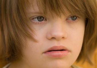 visage d'une enfant trisomique