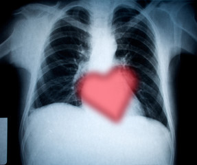 chest xray and heart for valentines holiday