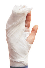 Broken hand isolated on white.