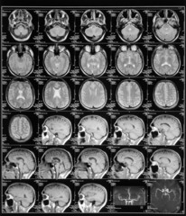 head magnetic resonance image