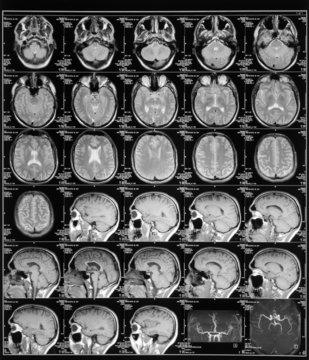 head magnetic resonance image