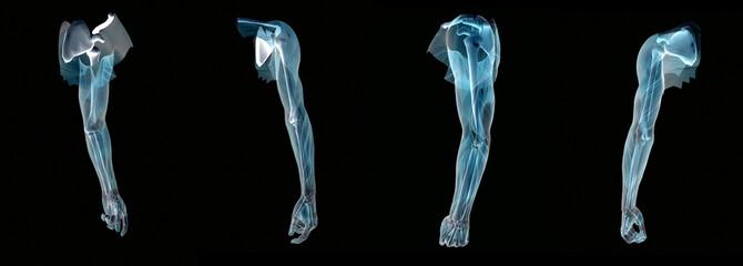 Anatomy an arm x-ray