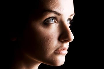 Female acne sufferer