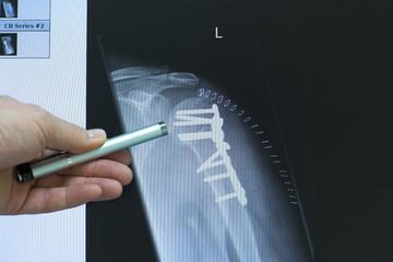 Operation eines Oberarmbruches