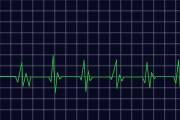 diagramm - herzfrequenz