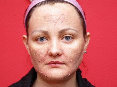 Eine Frau mit unreiner Haut. Peeling.