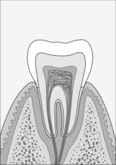 molar tooth BW