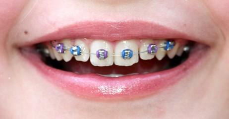 Zahnspangenlächeln