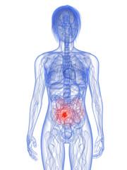 transparenter Körper mit Darmtumor