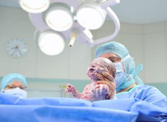 Newborn Baby After Caesarean Section 1