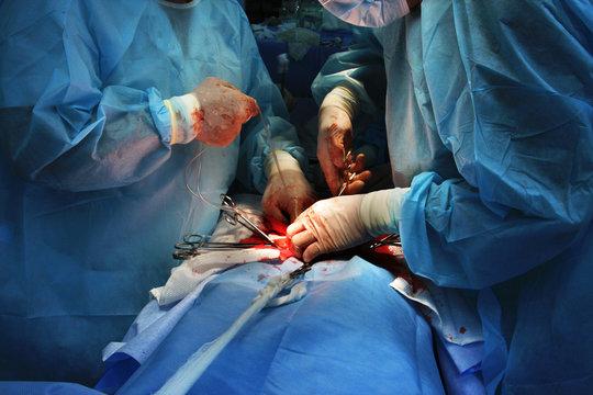 Surgery. Cancer ill women operation