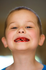 Child with his tooth pulled