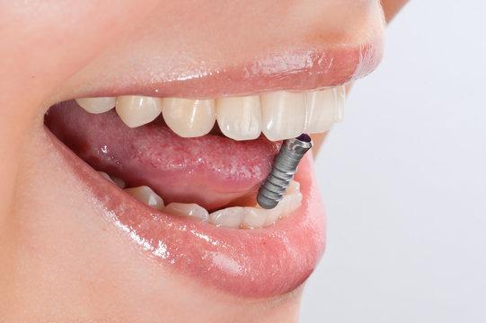 Geöffneter Mund mit Implantat