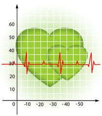 Diagram of the heartbeat