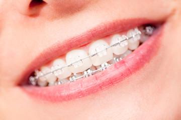 Strahlend Mund mit Zahnspange