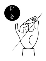 acupuncture of traditional Chinese medical science
