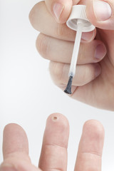 treating a wart with medicine