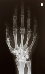 X-ray picture of right hand