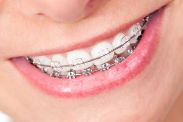 Mund mit Zahnspange und schönen Zähnen