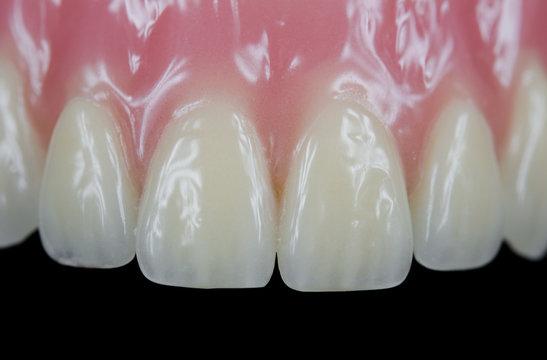 Dritte Zähne, Front