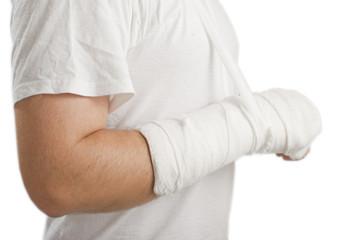 man with a broken hand