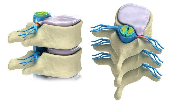 Prolapse of intervertebral disc isolated on white