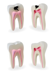 Sound teeth and teeth with caries in section