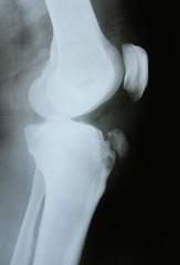 x-ray image of the bones of leg