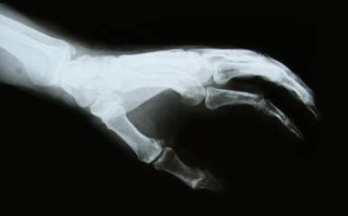 x-ray image of the bones of arm