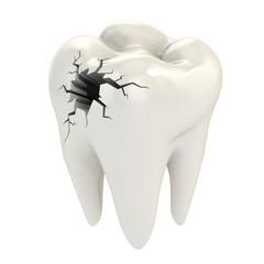 toothache 3d concept