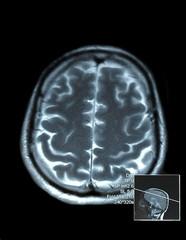 magnetic resonance (MR) scan brain and skull