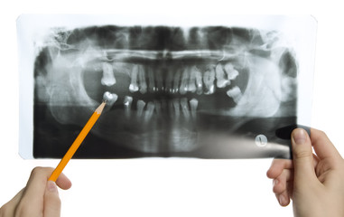 Roentgen photo of teeth