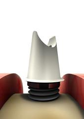 Obraz Implantologie - fototapety do salonu