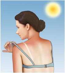 Sonnenbrand, Sonnenschaedigung